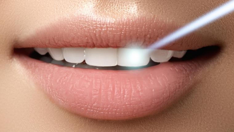 Избелването на зъбите – вреда ли е за тях?