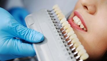 Как да се справим с различните типове оцветяване на зъбите?