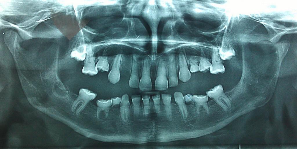 Maladie des os de verre + Dentinogenèse Imparfaite