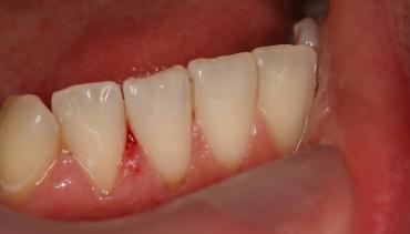 Естетични пломби на предни зъби – мисията е възможна!
