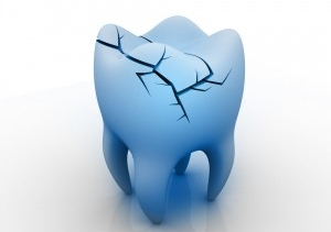 И зъбът се счупи…