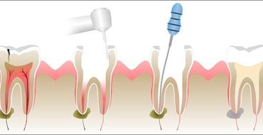 Какво представлява кореновото лечение и кога се извършва?