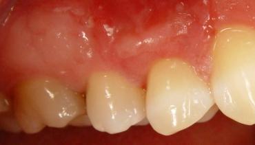 Отдръпване на венеца от зъбните шийки? – отговаря Д-р Аника Чолакова