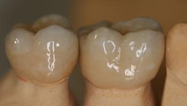 Възстановяване на зъб или екстракция (изваждане)? – клиничен случай
