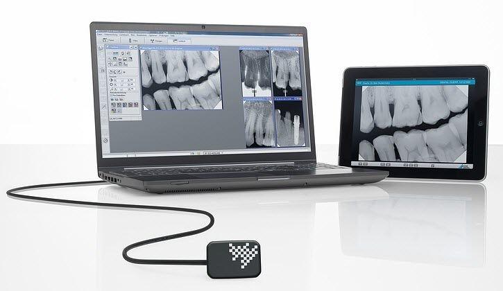 Вредни ли са рентгеновите снимки?