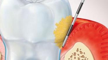Как да се предпазим от появата на пародонтални заболявания (гингивит и пародонтит)?