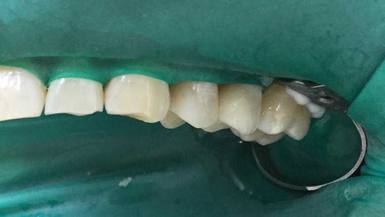 Индирекно възтановяване от литиев дисиликат в зоната на усмивката