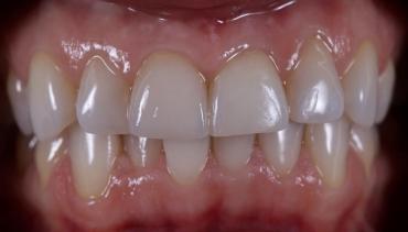 Естетикa… Керамична корона на преден зъб