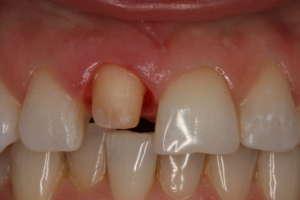 Почистване, възстановяване и препариране на зъбно пънче