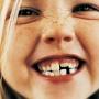 Профилактика на кариес при деца
