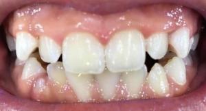 Полиране на зъбите
