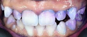 Визуализиране на зъбната плака