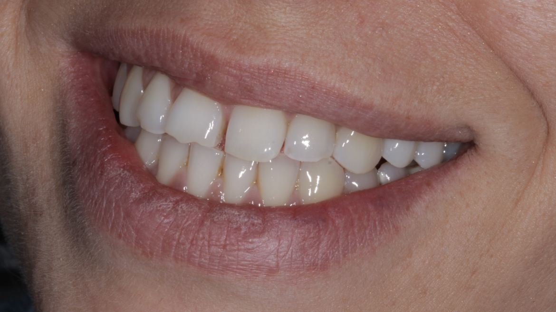 Едноетапно възстановяване на счупен зъб с имплант