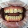 Надвенечен (видим) и подвенечен (невидим) зъбен камък. Защо е важно да почистваме редовно зъбен камък и плака?