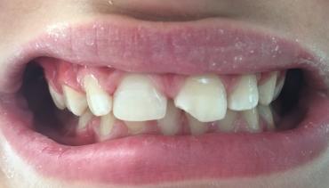 Счупен преден зъб на дете. Как да го възстановим?
