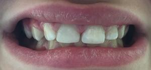 Въстановени предни зъби
