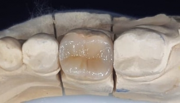 Възстановяване на зъб с овърлей (полукорона) – клиничен случай