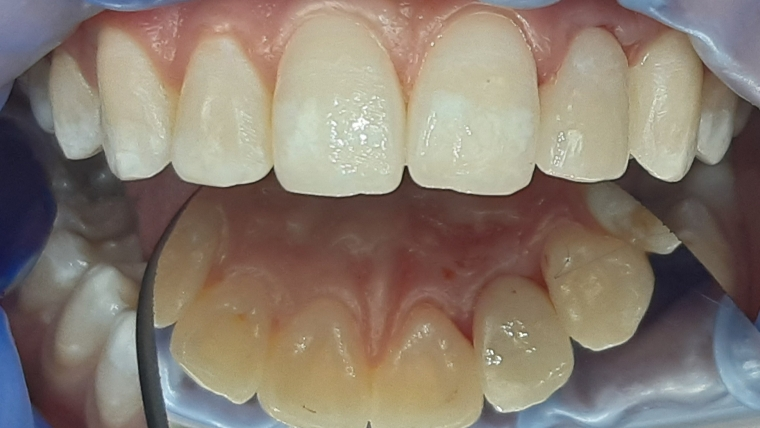 Лечение на периодонтит (гранулом, възпаление около корена на зъба)