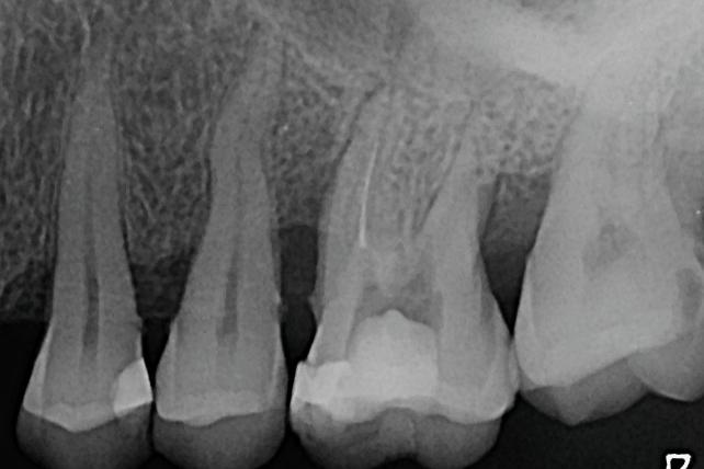 Отстраняване на счупен инструмент от кореновия канал (клиничен случай)