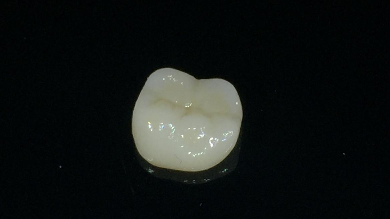 Възстановяване на ендодонтски лекуван зъб с циркониева корона. Клиничен случай.