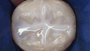Какво представлява силанизирането на детските зъби и кога е необходимо?