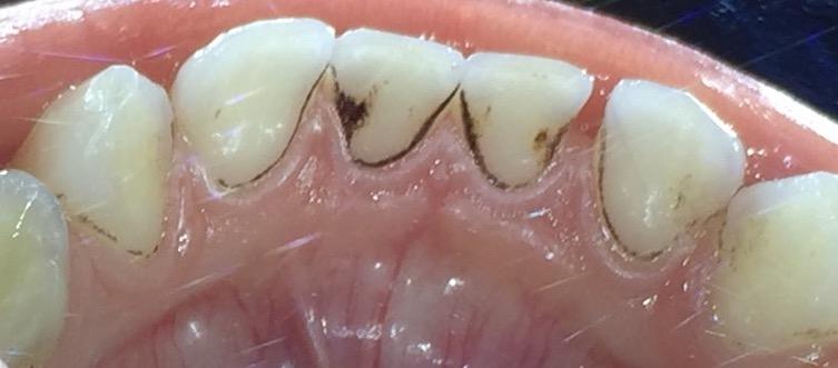 Тъмни точковидни петна по зъбите на детето – какво са те и нужно ли е да се отстранят?