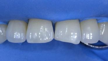 Бондинг на предни зъби – клиничен случай
