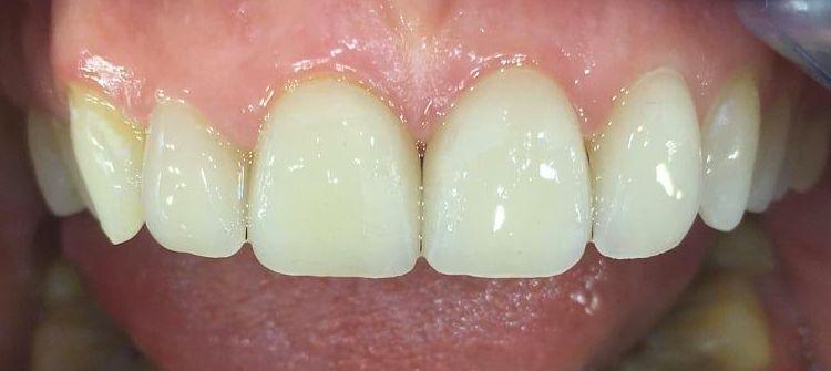 Фасети –високоестетичен вариант за затваряне на разстояния между предните зъби – kлиничен случай