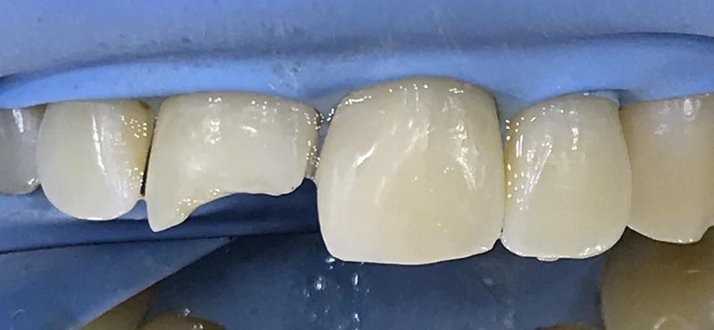 Клиничен случай на възстановяване на счупени предни зъби при възрастен пациент